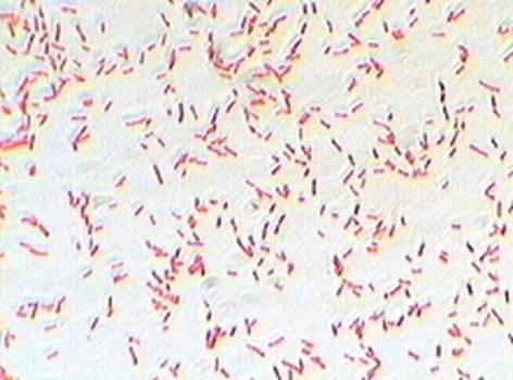 Ciprofloxacin Bakterielle Infektion Online bestellen