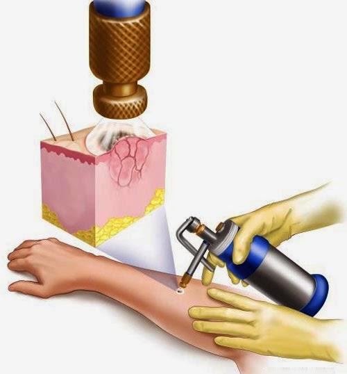 Obat Kutil Kelamin Tanpa Cryotherapy