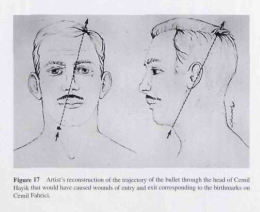 birthmark death