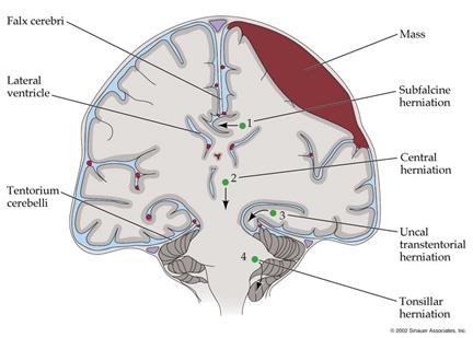 Brain Herniation1