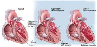 arrhythmogenic right ventricular dysplasia ecg