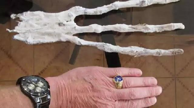Το εξωγήινο χέρι με τρία δάχτυλα που βρέθηκε στο Περού