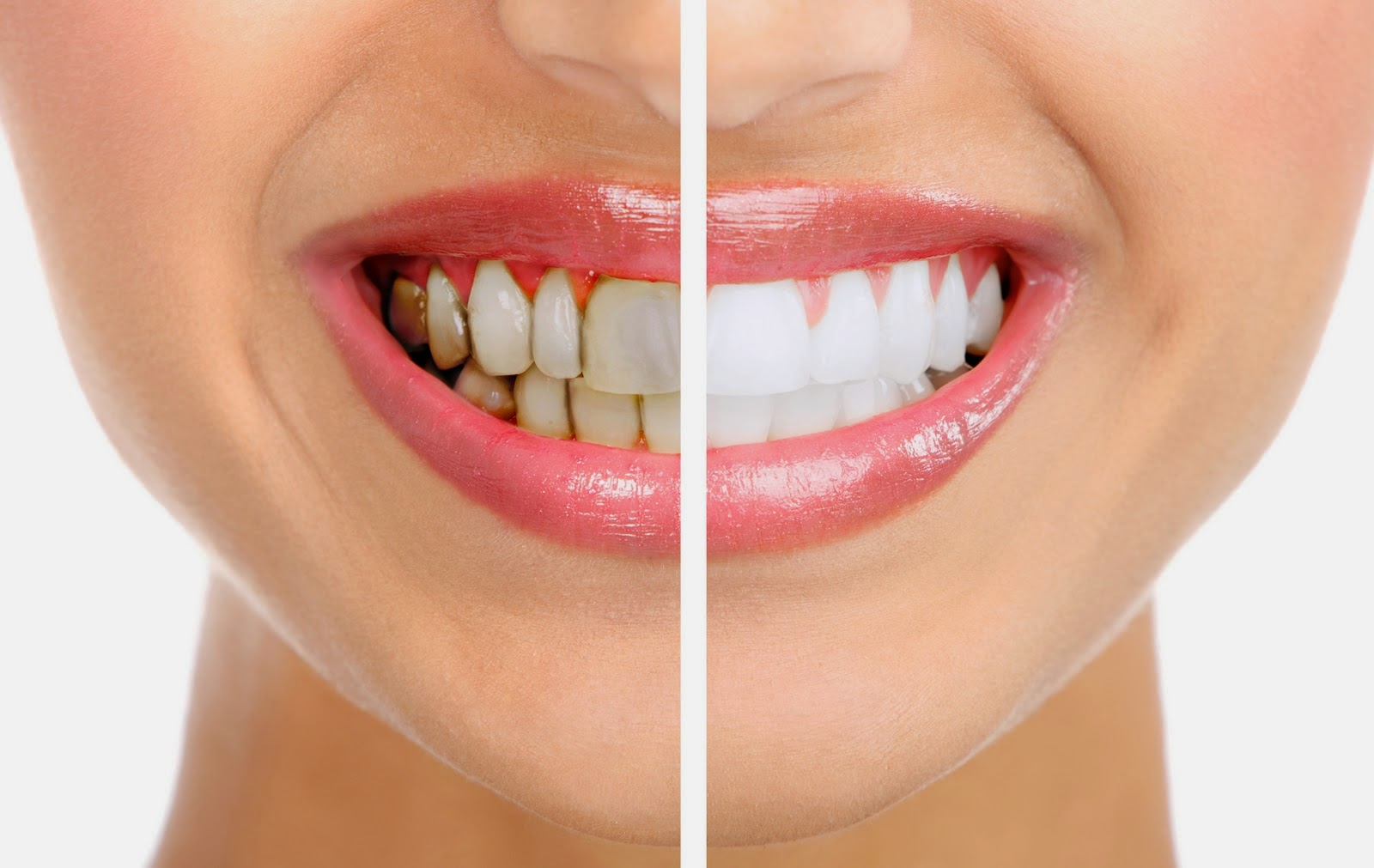 Аппарат ультразвуковой чистки зубов в домашних условиях