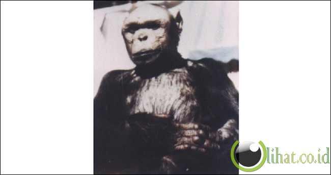 Oliver, the 'Humanzee': a human-chimp hybrid