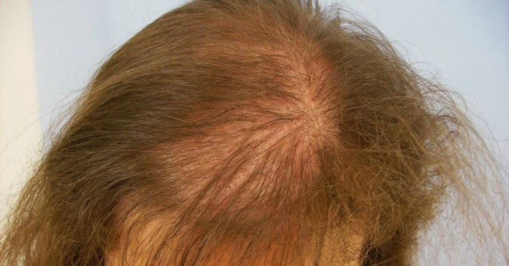 El aceite del comino negro para los cabellos de la caspa