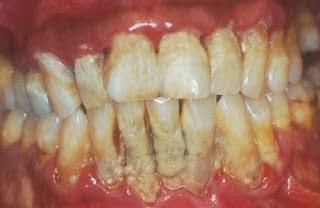 Gigi Goyah dan Cara Mengatasinya