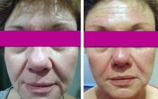 que es la mesoterapia facial