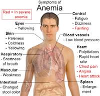 Anemia . Penyebab, Faktor Risiko dan Pencegahan