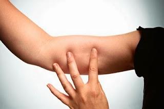 Posición del implante hormonal anticoncepcional