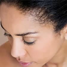 oily scalp