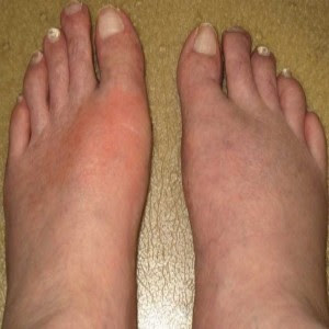 Myth circulating in society now mean that the joint pain of gout. This ...