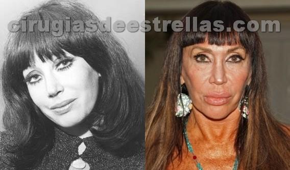 Antes y Después del bisturí,impresionante !!