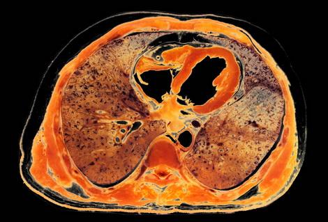 Anatomia Humana I Dr. Ruben Carrasco