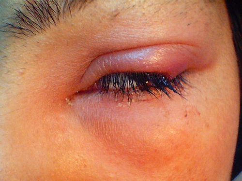 Science Behind the Scenes: Eye Infections