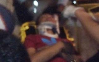 Le dan brutal golpiza a joven de 15 años tras ser asaltado en Cosamaloapan