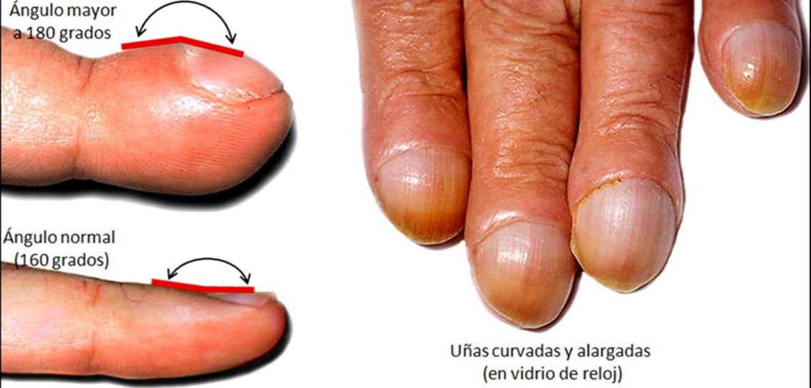 Dermatología y más cosas: A TRAVES DE LAS UÑAS
