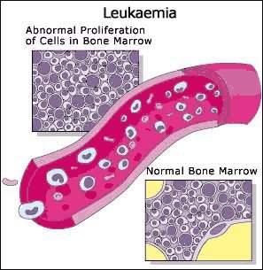 Gejala Penyakit Leukimia