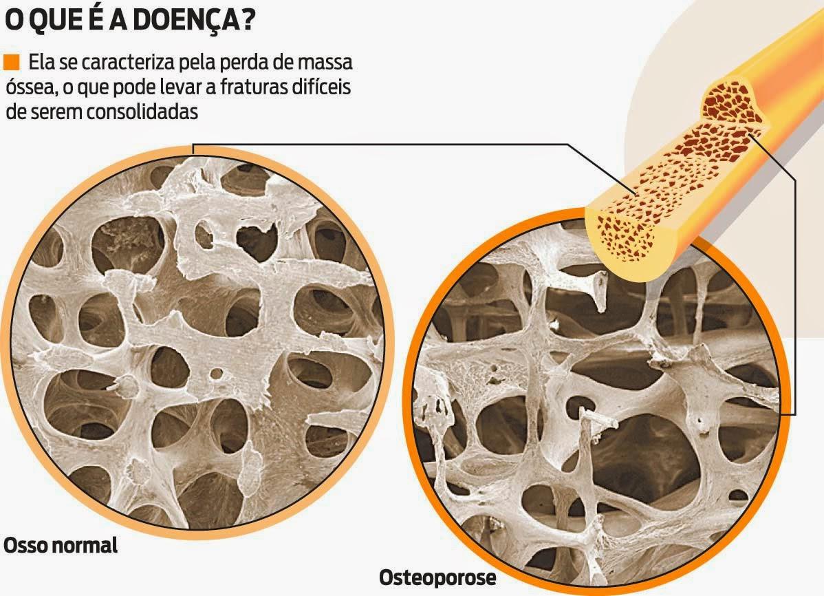 osteoporose+(2) - OSTEOPOROSE...