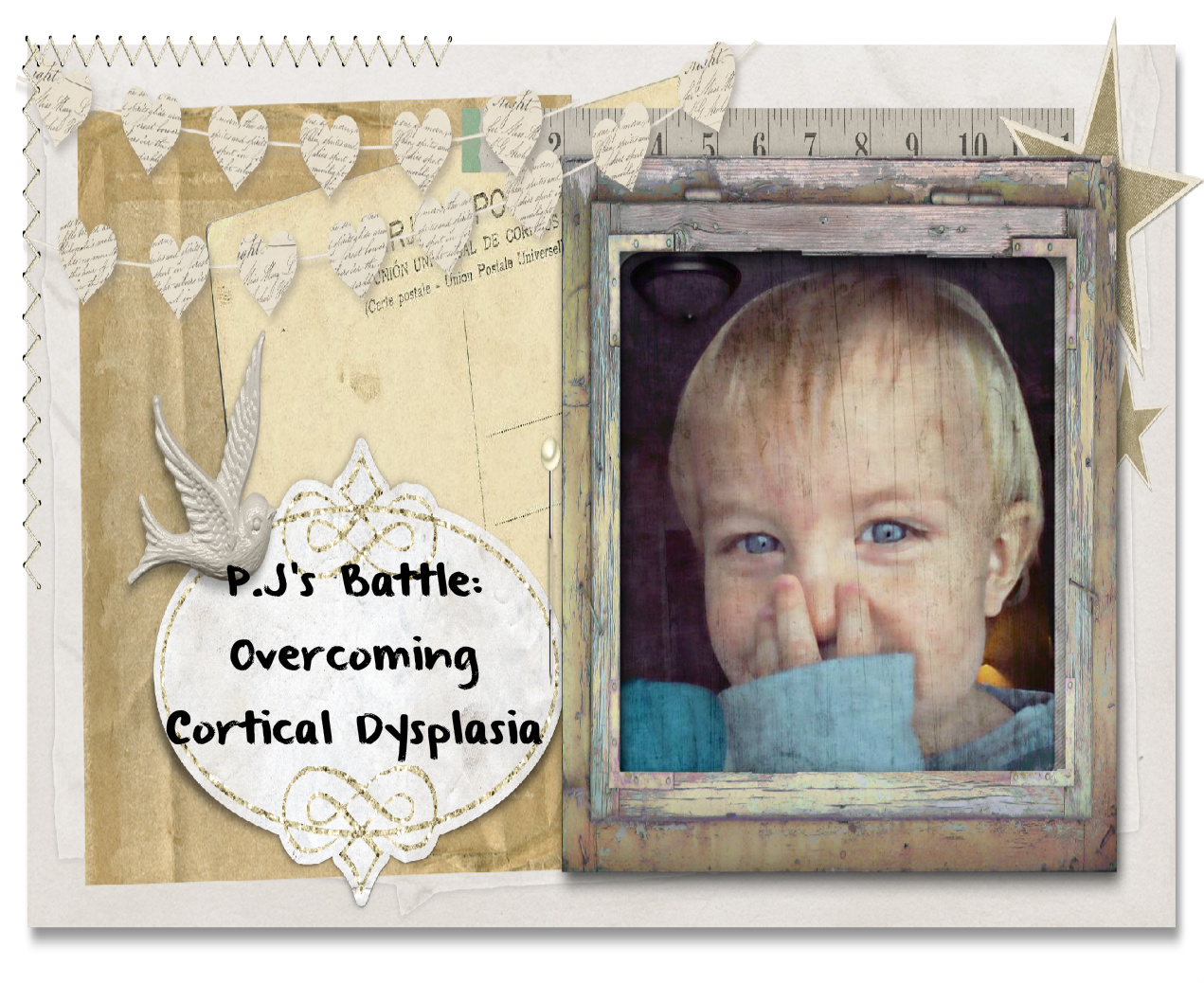 P.J's Battle: Overcoming Cortical Dysplasia