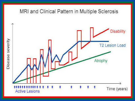 fatigue severity scale multiple sclerosis pdf