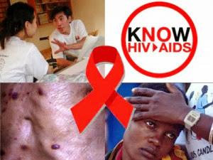HIV symtomps