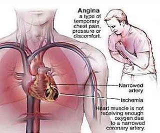Ciri%2BCiri%2BPenyakit%2BJantung Gejala Penyakit Jantung