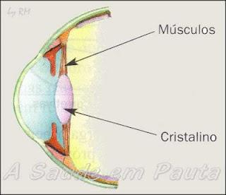 Na acomodação visual, o cristalino fica mais delgado para visualizar objetos distantes.