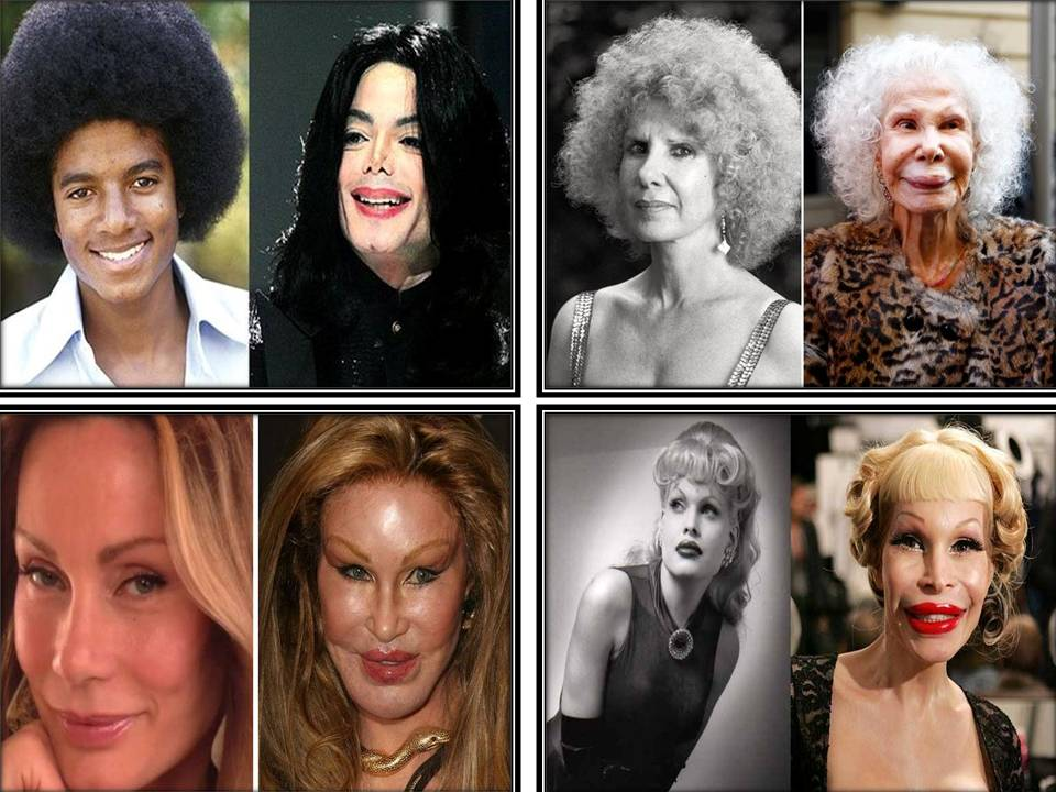 10 Worst Celebrity Plastic Surgery Mishaps in USA