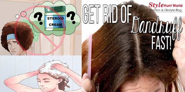 How To Get Rid Of Dandruff Naturally At Home With Only 2 Ingredients!