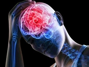 http://www.neurosurgerynow.com/head-injuries.php