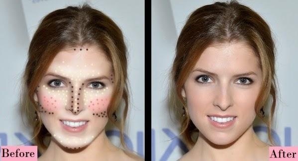 Correcciones rostro triángulo invertido