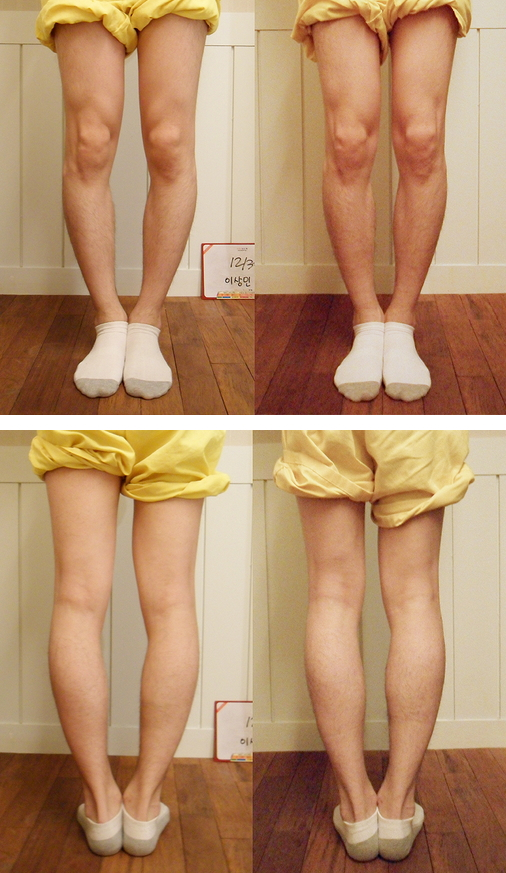 Yakson(약손명가): Natural Curved Legs Care