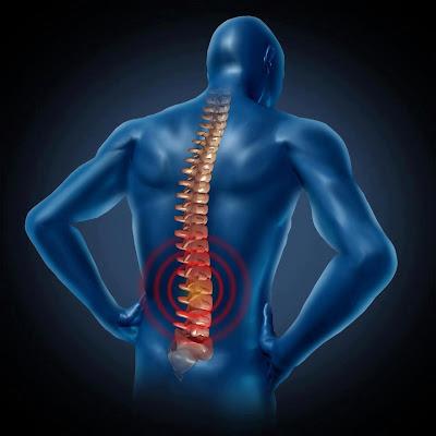 التهاب المفاصل وآلام الظهر والرقبة