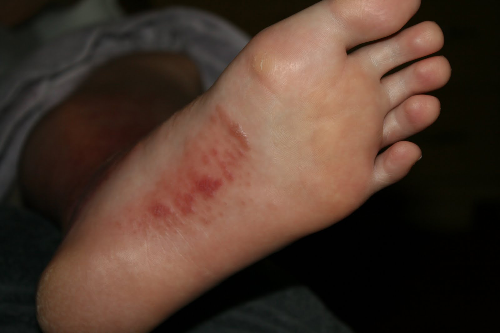itchy blisters on bottom of feet #11