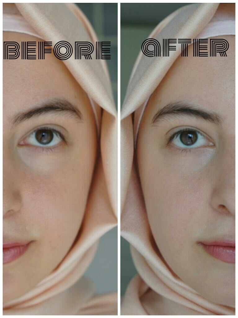 Anticeptic For Soul Loreal Skin Perfection Bb Cream Review