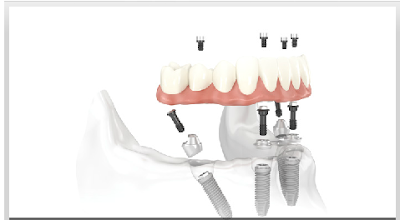 Stamford dental implants