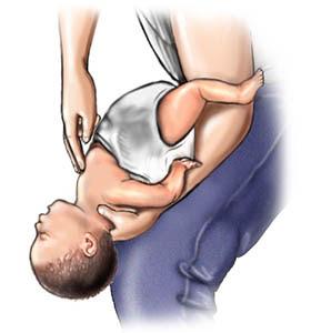 bebek ve çocuklarda ilkyardım