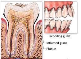Wiwin Oktawinata; Plak adakah salah satu penyebab gigi sakit. Plak adalah tumpukan bakteri yang meyelimuti permukaan gigi yang membentuk satu lapisan tipis.
