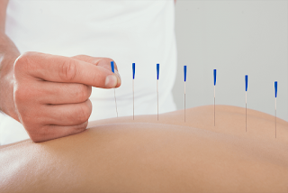 Como funciona o Dry Needling?