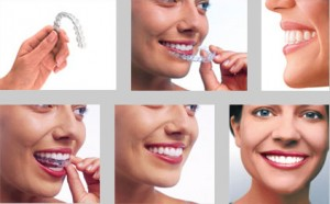 Invisalign Treatment For Adults & Teens