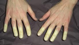 Tingling In Hands After Car Accident