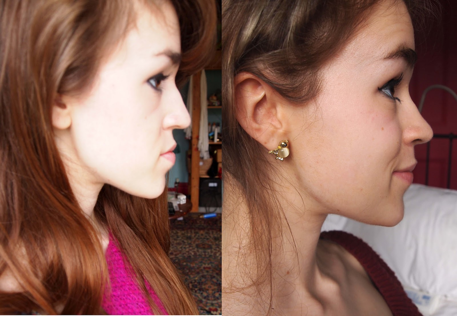 Rosa's Jaw Surgery Story