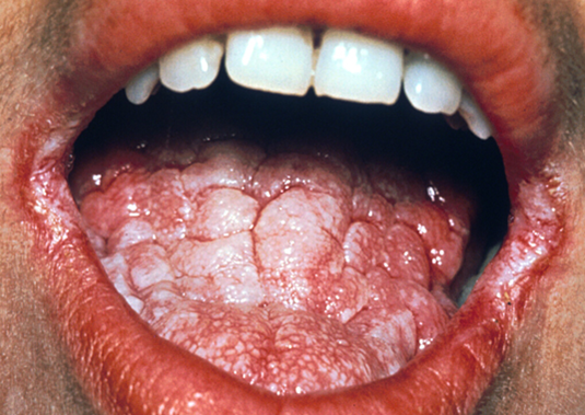 Chronic Mucocutaneous Candidiasis Clinical Presentation: History ...