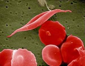 obat malaria sederhana