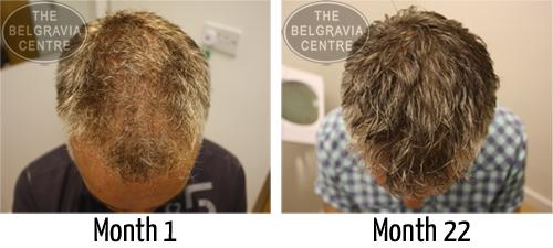 saw palmetto hair regrowth success