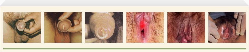 Penyakit Sipilis Pada Pria Dan Wanita