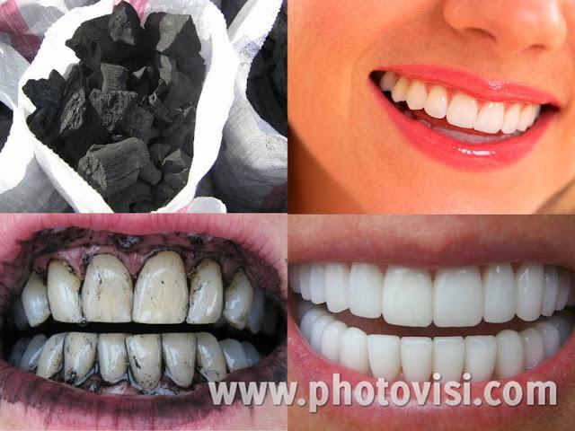 وصفة هائلة لتبييض الأسنان بالفحم
