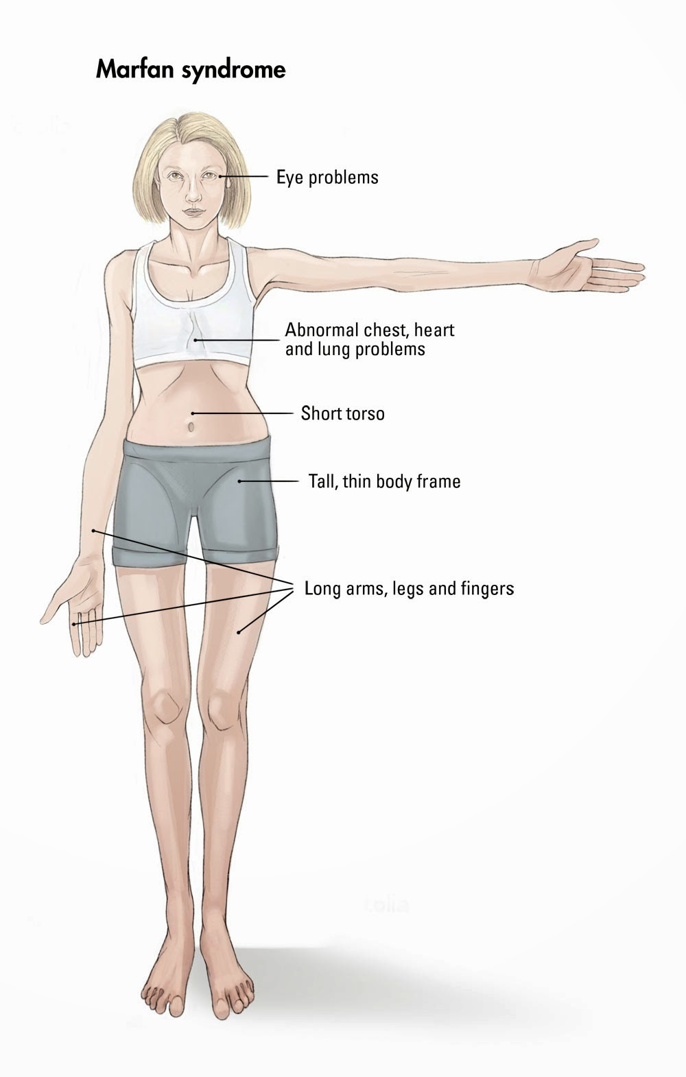 Marfan Syndrome Effects on the body