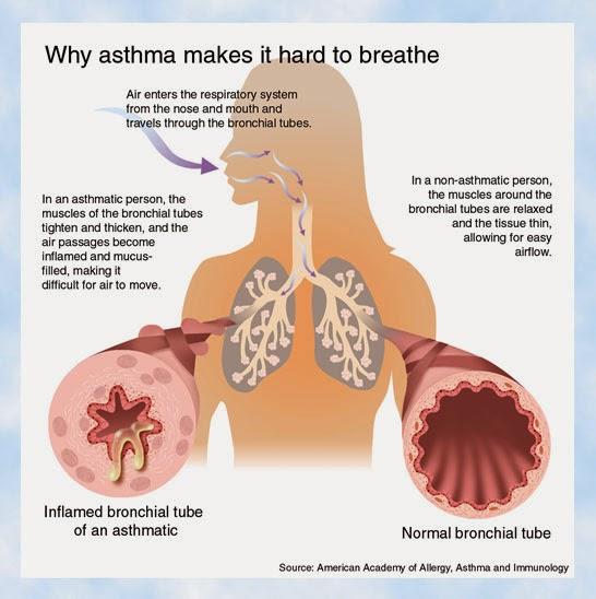 tanda asma berlaku