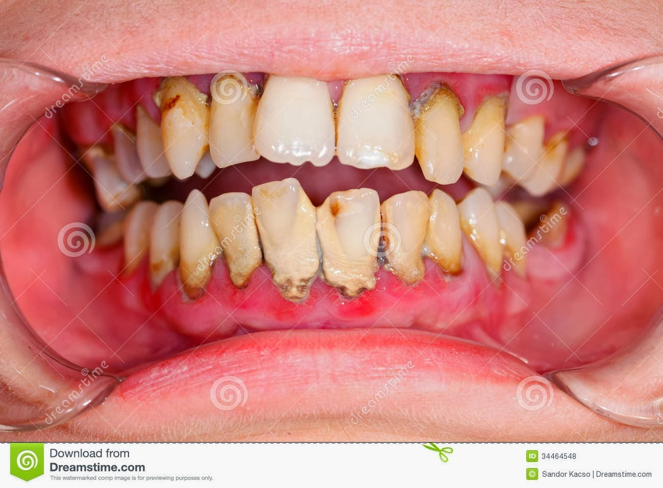 DENTAL: ANUG (Acute Necrotizing Ulcerative Gingivitis) Or Trench Mouth
